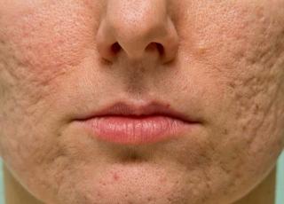 Как убрать рубцы на лице