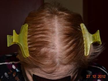 2016 10 04 13 50 58 373x280 - Обследование при выпадении волос