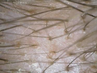 2016 10 04 13 52 06 373x280 - Обследование при выпадении волос