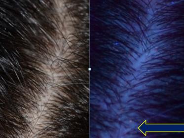 2016 10 04 13 53 04 373x280 - Обследование при выпадении волос