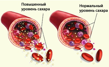 ozonoterapiya2