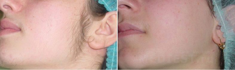 эпиляция лица для женщин 787x236 - Лазерная эпиляция лица для женщин