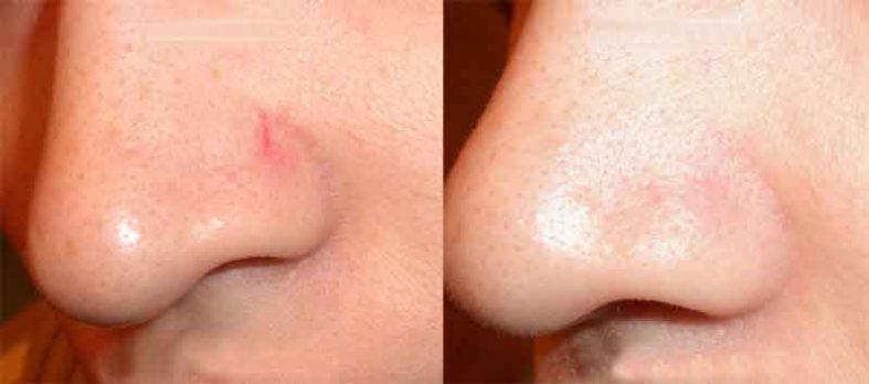 сосудов на носу 787x348 - Удаление сосудов лазером на носу