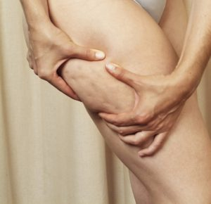 21332304 300x290 - Массаж для похудения - антицеллюлитный массаж