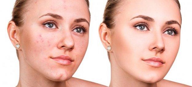 shlifovka lica - Лазерная шлифовка лица (лазер Cosmopulse II -СО2)