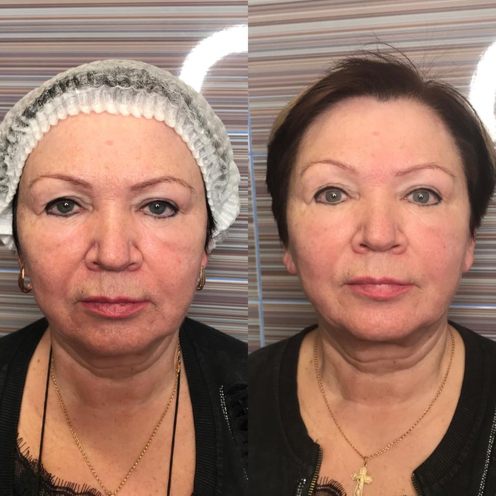Миофасциальный массаж, до и после одной часовой процедуры